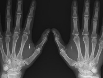 Man injects hands with Bitcoin wallet NFC chips to make payments like a boss